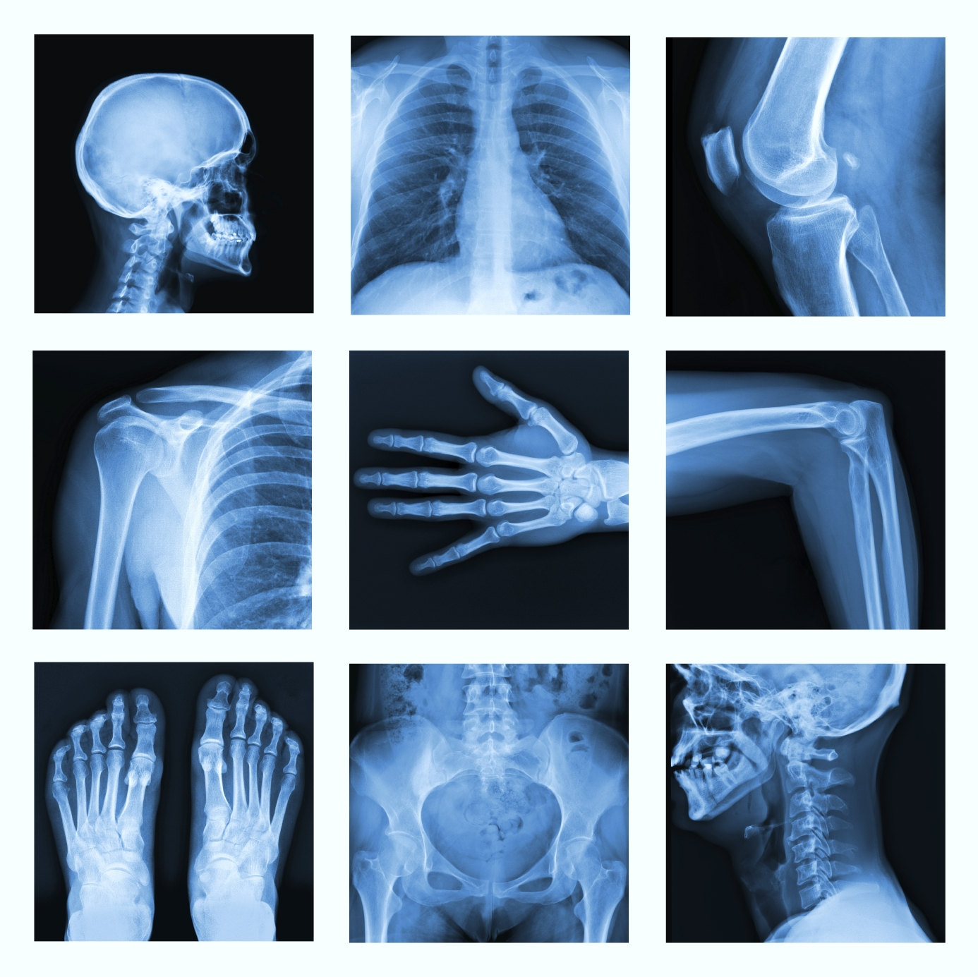 medical uses of regular x rays An easy-to-understand explanation of what x rays x rays can also be used to sterilize medical roughly confirming the wavelength of x rays and the regular.